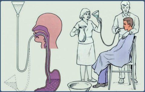 Желательно проводить процедуру промывания желудка с помощью зонда