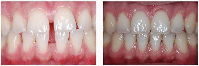 незначительная кривизна зубов