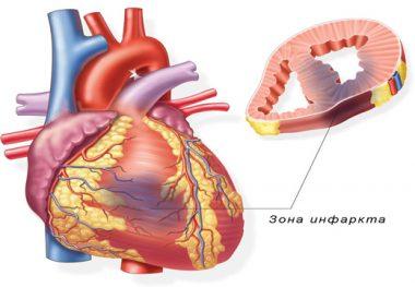 Сходные черты и отличия болей в сердце, невралгии и остеохондроза