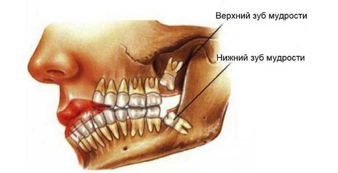 Удаление зубов мудрости на верхней челюсти