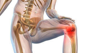 коленный сустав