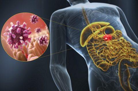 Гастроэнтерит бактериальной или немкробной природы