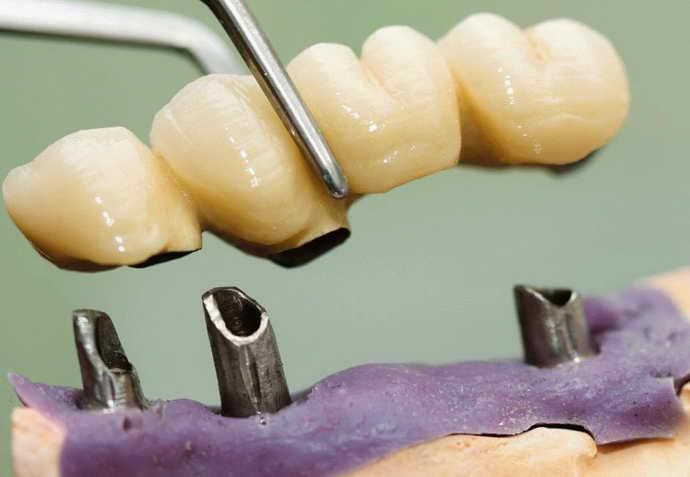 Коррекция формы зубного протеза