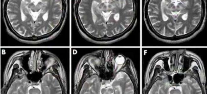 Дисциркуляторная энцефалопатия: симптомы, признаки, лечение