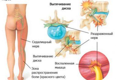 нервы и остеохондроз