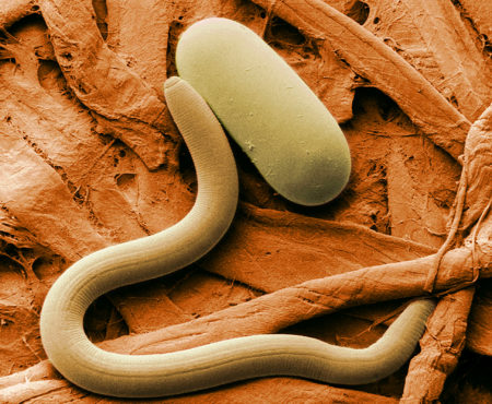 Причины, симптомы и методы лечения глистной инвазии у взрослых, как защитить свой организм