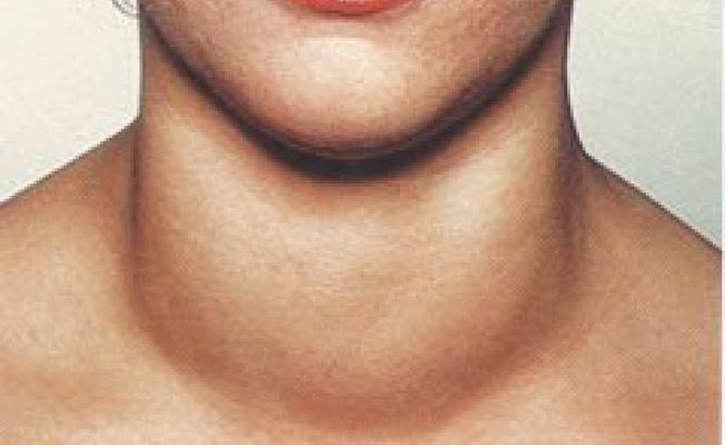 Фото: Такое увеличение щитовидки сложно не заметить