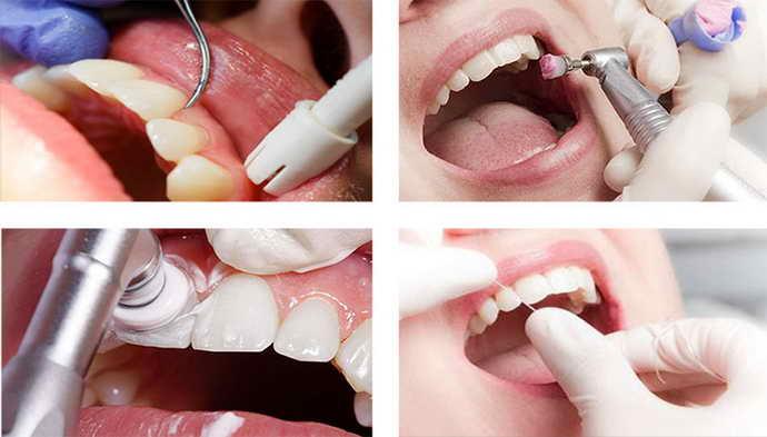 Этапы удаления зубного камня