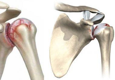 плечевой сустав остеохондроз