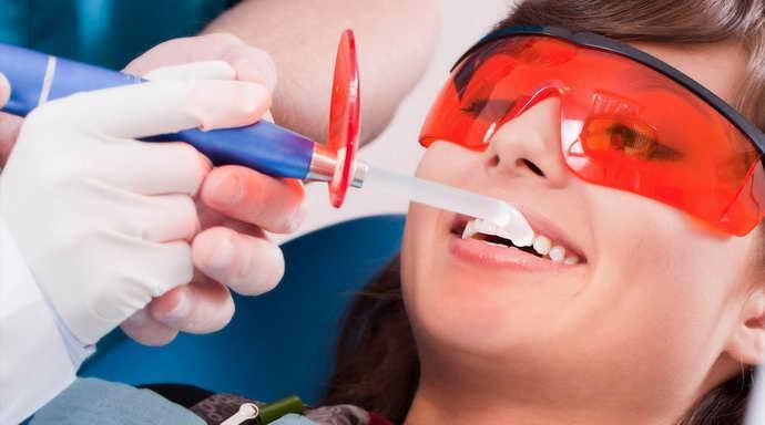 ультразвуковое отбеливание зубов