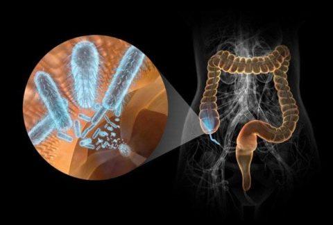 Болезнетворные микробы в кишечнике
