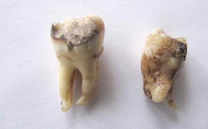 Почему необходимо обратиться к врачу при прорезывании зуба мудрости