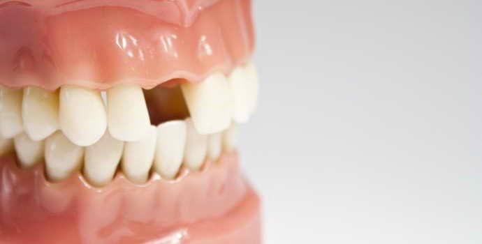 Аномалии зубов: классификация, причины, способы устранения