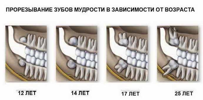 Какие зубы называют «мудрыми»