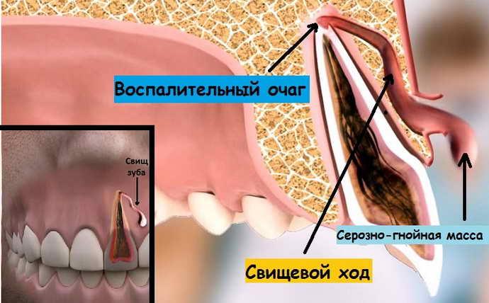 Симптомы при появлении кисты зуба
