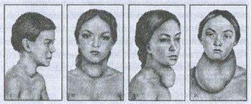 Внешний вид шеи у пациентов с зобом различной степени.