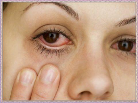 Слизистые оболочки глаз необходимо промыть для снятия воспаления