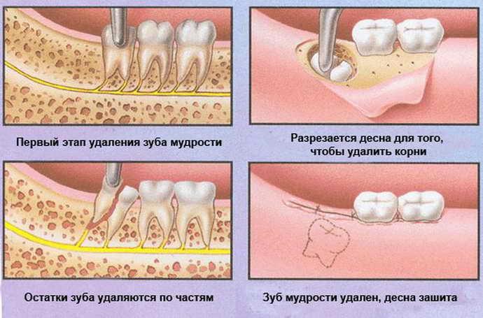 Специфика удаления зуба мудрости