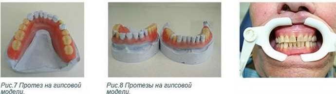 как устанавливают нейлоновый зубной протез