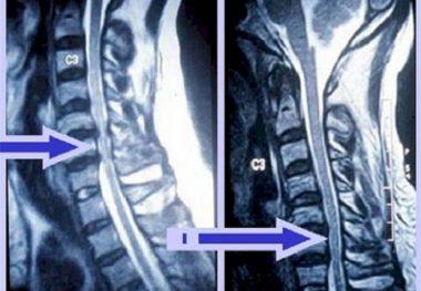 рентген остеохондроза