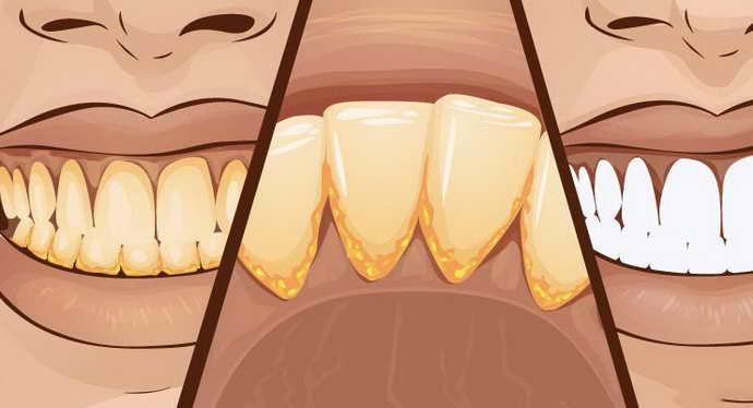 зубной камень как причина гнилостного запаха изо рта