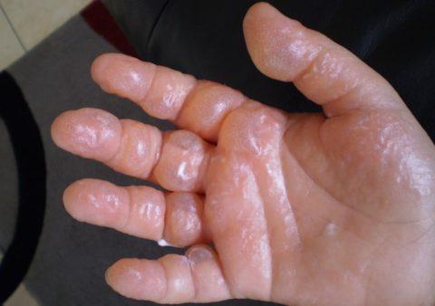 Так выглядит кожа после контакта с борщевиком