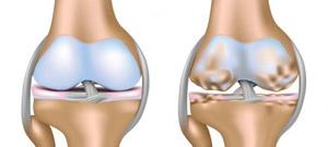 коленный сустав человека