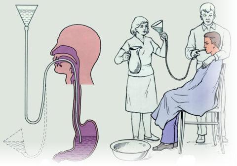 Промывание желудка - одно из основных действий помощи