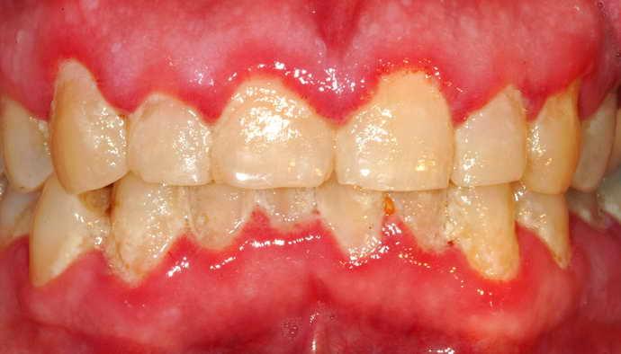 Явные дефекты внутренней части зуба и виниры