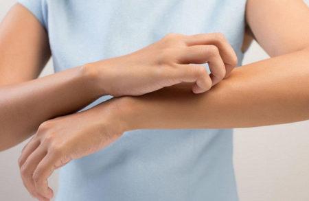 Как отличают чесотку от аллергии: симптоматика, признаки, диагностика и лечение