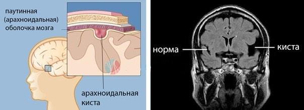Арахноидальная киста