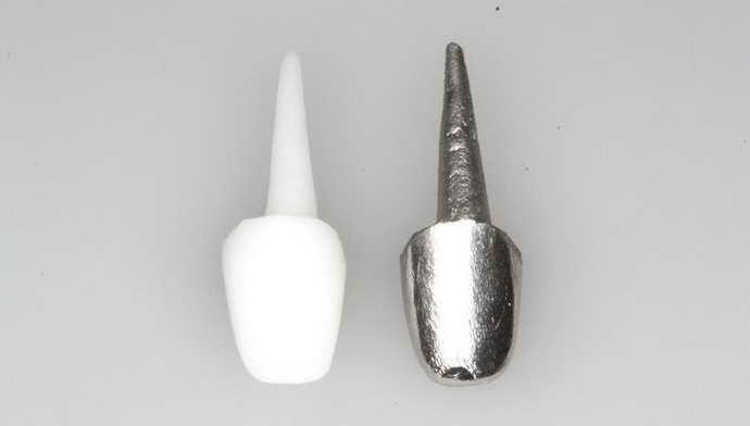 какие есть вкладки на зуб под коронку