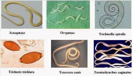Анализ кала на яйца глистов: правила проведения, сбора и хранения, расшифровка