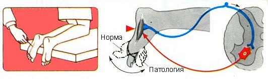 Симптом Бабинского диагностика