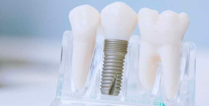 Что следует знать перед протезированием зубов коронками