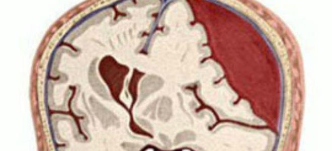 Гематомы головного мозга рассасываются thumbnail