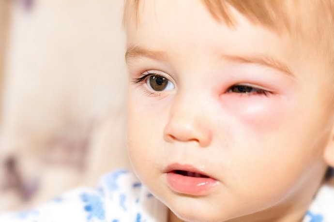 Отеки глаз и слизистой рта при стоматите