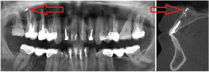 Возможные последствия после пломбирования зубов
