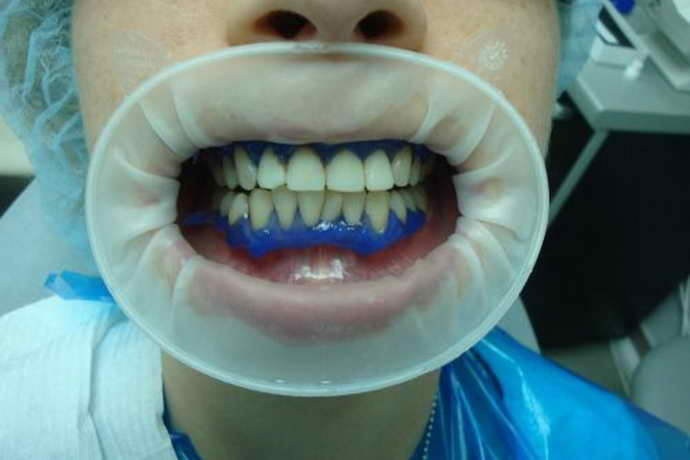 виниры примеряют к зубам пациента
