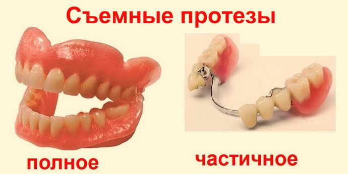 Типы съемных протезов
