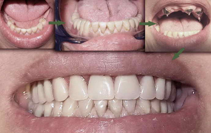 Зубные протезы на присосках что это такое
