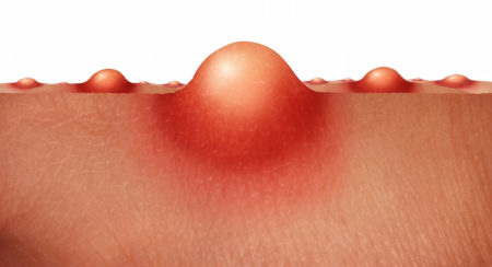 Откуда берутся личинки овода в человеке, как она выглядит, и как можно от нее избавиться