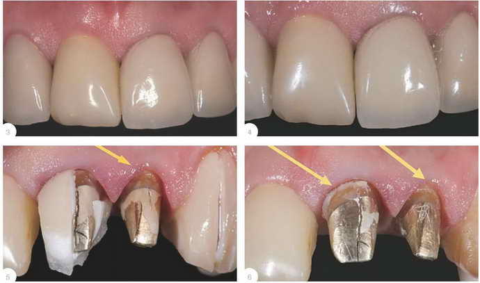Материалы вкладку на зуб под коронку