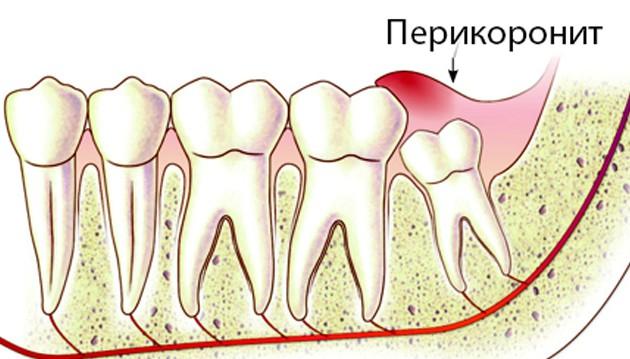 Перикоронит - одна из причин, почему болит зуб мудрости