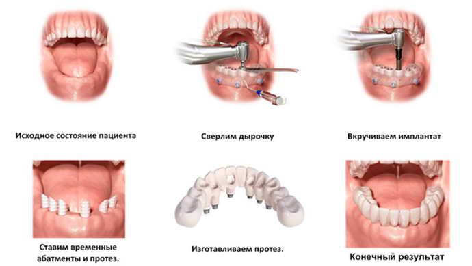 Показания к проведению имплантации