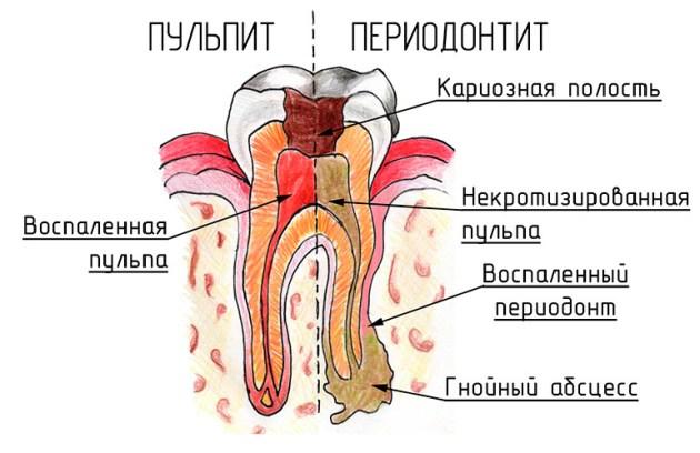 если болит зуб но кариеса нет - причиной может быть пульпит или периодонтит