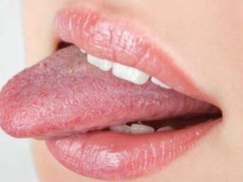 Покалывание в области губ и языка признак действия PSP-токсина