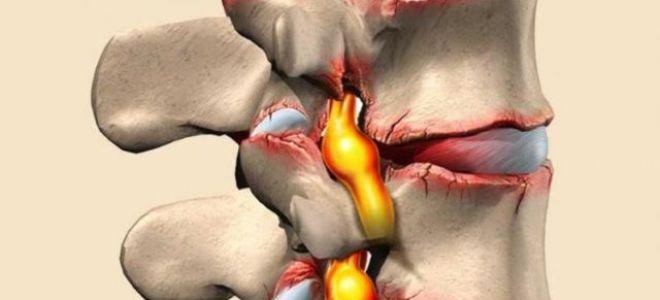 Cпондилёз грудного отдела позвоночника: симптомы, лечение и осложнения
