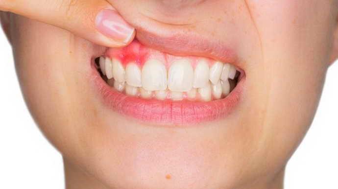 Классификация радикулярная киста верхней челюсти
