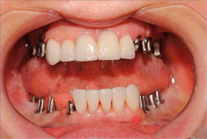 зубные импланты и боль языка